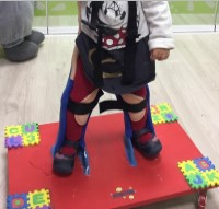 ortopedia-paralisis-cerebral-infantil